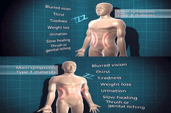 Early Diabetes Symptoms,10 early Diabetes Signs