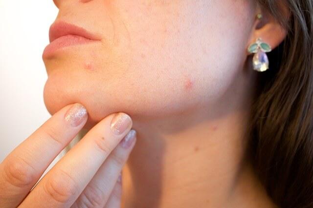 कील मुँहासे acne-keel-muhaso-ka-nimbu-se-ghrelu-upchar