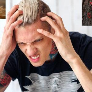 Remove lice eggs Ju juon likhon from hair बालों से जूँ को दूर करने के लिए घरेलू उपचार