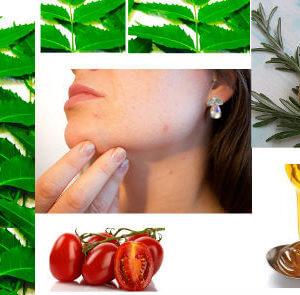 pimples on face treatment at home पिंपल्स हटाने के लिए घरेलू उपाय
