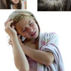 roosi dandruff home remedies in hindi बालों से रूसी हटाने के 34 घरेलू उपाय
