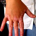 (Leucoderma) सफेद दाग होने के कारण
