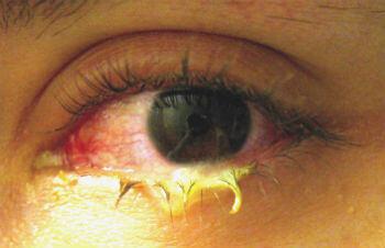 Thumb-aankh aane ke gharelu upchar conjunctivitis eye flu आँख आने कारण, लक्षण, सावधानी
