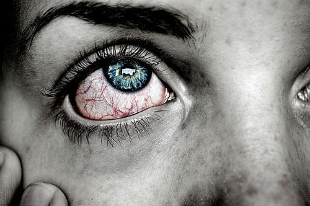 आँख आने पर घरेलू उपचार, कारण, लक्षण, सावधानी aankh aane ke gharelu upchar conjunctivitis eye flu