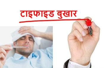 Typhoid fever ke lakshan karan bachav टाइफाइड के लक्षण, कारण और बचाव के उपाय