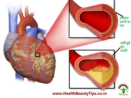 Bypass Surgery जानिए क्या है बाईपास सर्जरी-Bypass & Open Heart Surgery