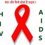 एड्स की जानकारी और होने के कारण :