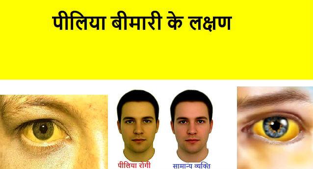 Jaundice Piliya ke lakshan karan upay पीलिया कारण, लक्षण और बचाव के उपाय