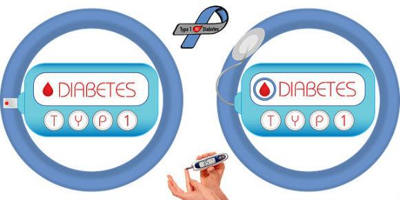 diabetes type 1 type 2 ke karan lakshan ilaj टाइप 1 और टाइप 2 डायबिटीज के कारण, लक्षण तथा उपचार
