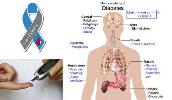 Diabetes side effects Complications hindi H2 डायबिटीज के साइड इफेक्ट्स और होने वाली अन्य बीमारियाँ