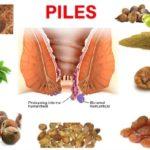 Piles hemorrhoids bawasir ka ilaj