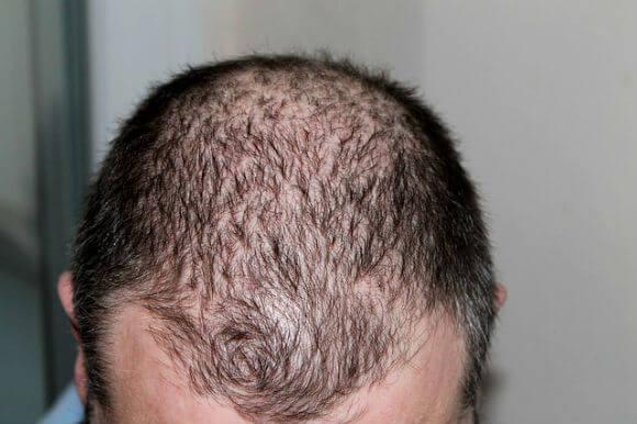 Baldness ganjapan ke karan bachav ayurvedic ilaj गंजेपन के कारण, बचाव और आयुर्वेदिक उपचार