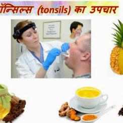 गले में टॉन्सिल के कारण, लक्षण, प्रकार तथा उपचार Gale me tonsil ke karan prakar gharelu ilaj
