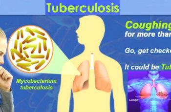 टीबी के कारण, लक्षण प्रकार और बचाव की जानकारी tb ke lakshan karan types bachav