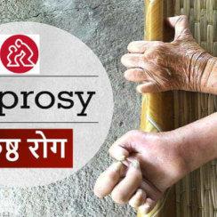 kushth rog ka karan cause symptoms ilaj कुष्ठ रोग के कारण, पहचान, बचाव के उपाय तथा आधुनिक इलाज