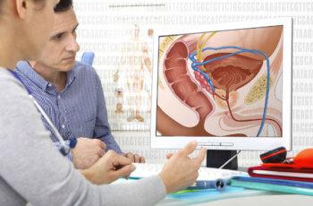 prostate cancer karan lakshan ilaj प्रोस्टेट ग्रंथि कैंसर की पहचान, कारण तथा आधुनिक उपचार