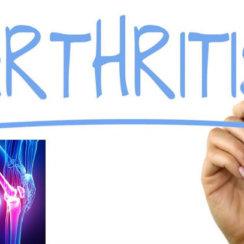 जानिए आर्थराइटिस के प्रकार, लक्षण तथा आधुनिक उपचार Gathiya arthritis ke prakar lakshan ilaj