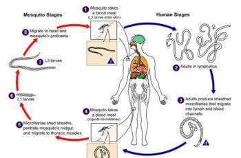 फाइलेरिया रोग क्या है ? कारण, लक्षण और बचाव की जानकारी filaria ke lakshan karan bachav upchar