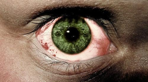 रोहे रोग या ट्रैकोमा होने के कारण, लक्षण तथा बचाव की जानकारी Trachoma rohe rog karan lakshan ilaj