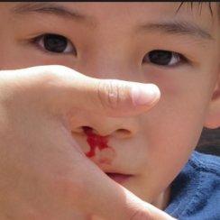 नकसीर फूटने के कारण, लक्षण तथा अचानक नाक से खून बहने पर क्या करें ? nakseer rokne ka upay karan kya karna chahiye