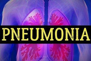 निमोनिया बुखार के लक्षण, कारण तथा बचाव की जानकारी pneumonia lakshan karan ilaj bachne upay